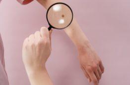 Lietuvos mokslininkų sukurtas naujas neinvazinis metodas gali nustatyti melanomą didesniu nei 90 proc. tikslumu